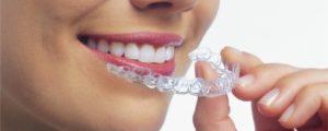 Ingen skæve tænder med invisalign